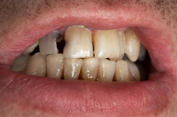 Patient mit zwei tiefen Löchern in den Frontzähnen.