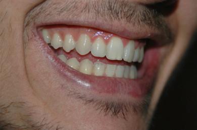 Herr mit gesundem, straffen, rosa Zahnfleisch.