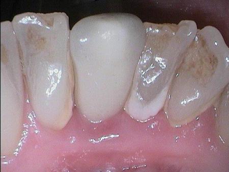 Vollkeramikkronen können natürlichen Zähnen in puncto Glätte absolut überlegen sein